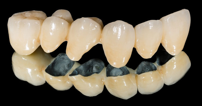 Step by Step: Preparing a Tooth for a Crown - Family ...
